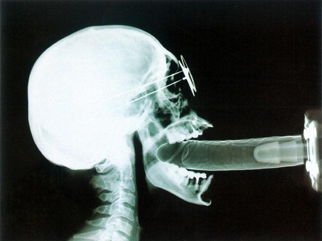 x-ray-dick-sexs-girl-ksa